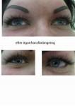 efter ögonfranförlängning